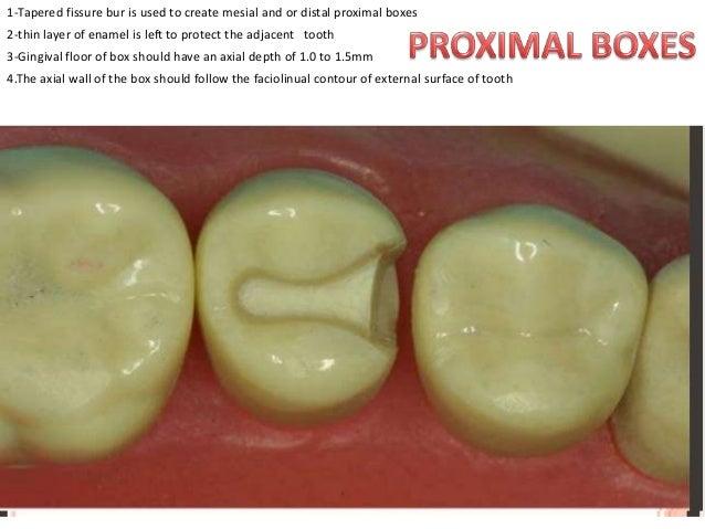 dental amalgam