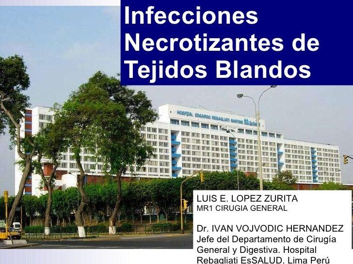 Infecciones Necrotizantes de Tejidos Blandos  LUIS E. LOPEZ ZURITA MR1 CIRUGIA GENERAL Dr. IVAN VOJVODIC HERNANDEZ Jefe de...