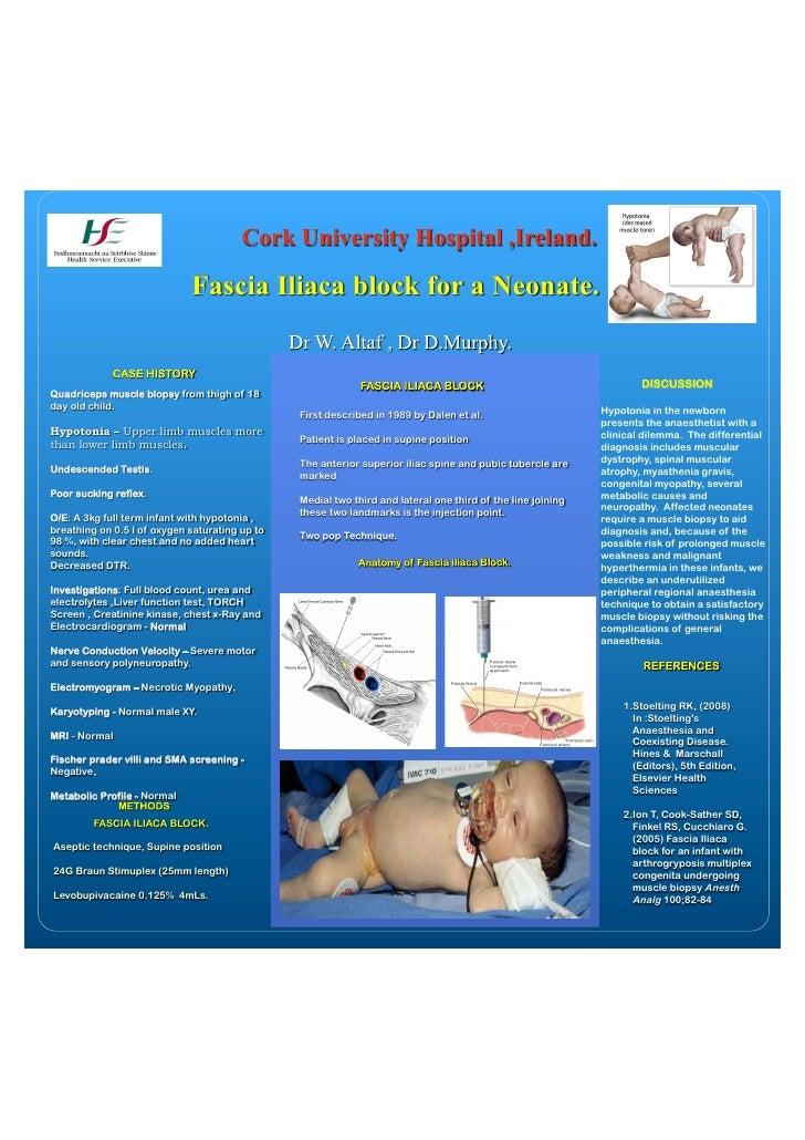 Cork University Hospital ,Ireland.                               Fascia Iliaca block for a Neonate.                       ...
