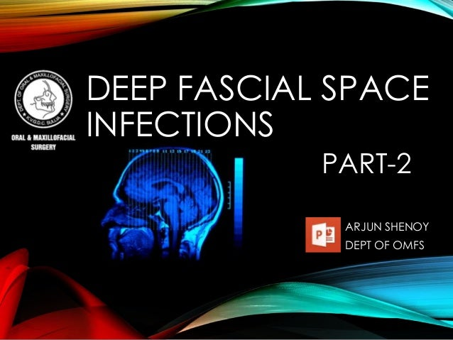 DEEP FASCIAL SPACE  INFECTIONS  PART-2  ARJUN SHENOY  DEPT OF OMFS