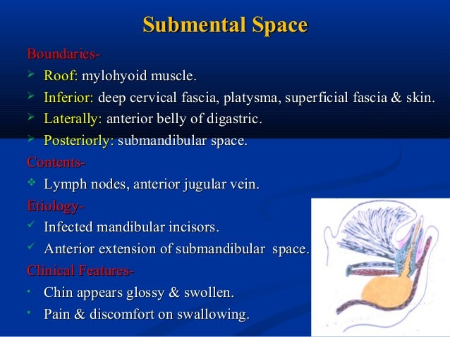 Fascial Space Amp Infections