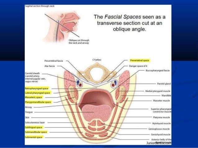 Parotid gland ct anatomy