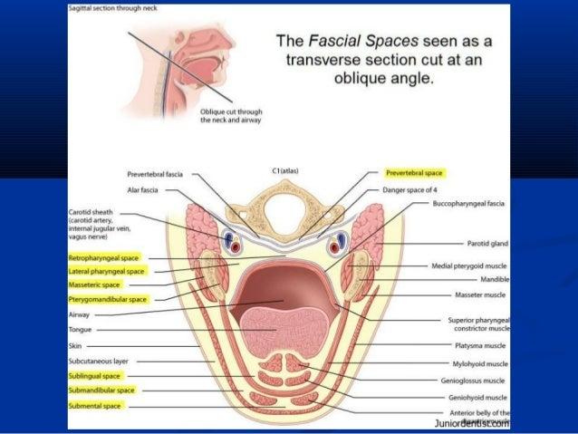 Facial space infection
