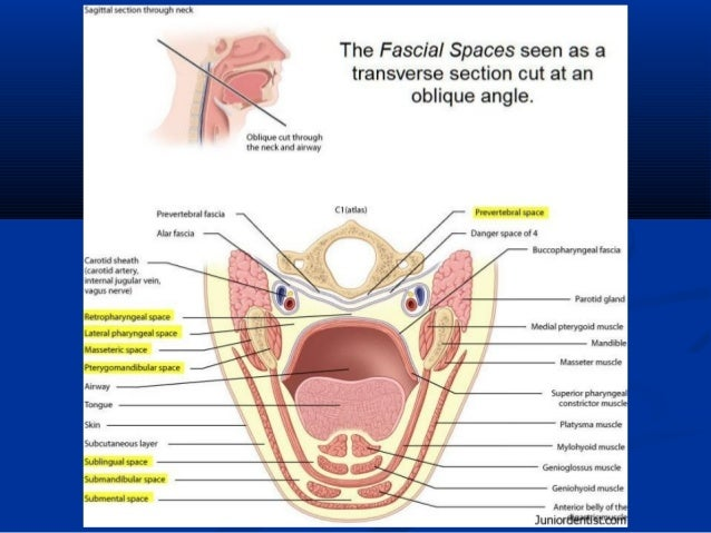 Fascial space & infections