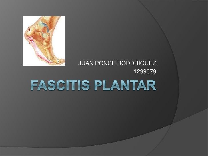 FASCITIS PLANTAR<br />JUAN PONCE RODDRÍGUEZ<br />1299079<br />