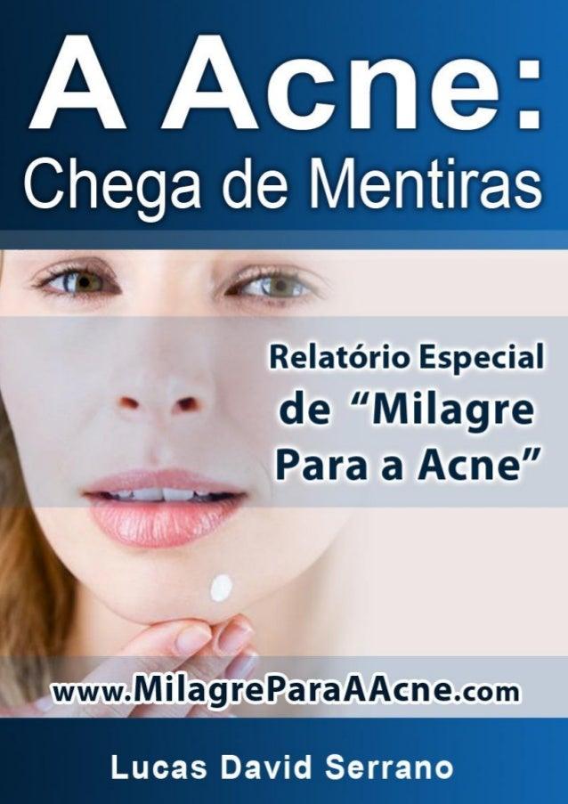 """Relatório Especial de """"Milagre Para A Acne"""" www.MilagreParaAAcne.com 1"""