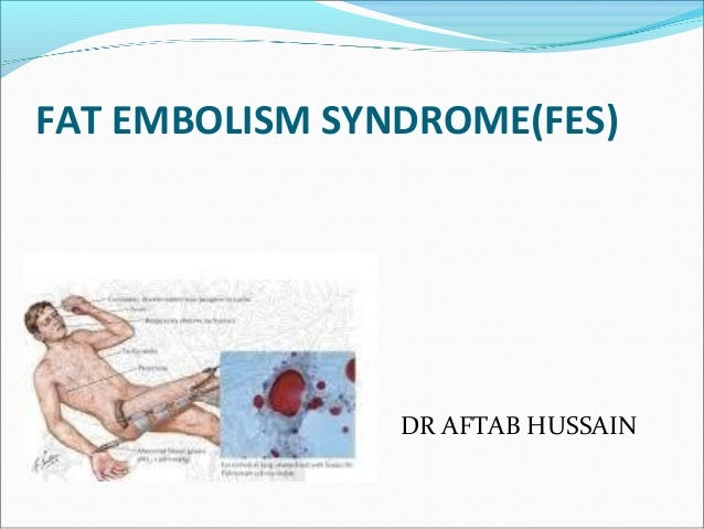 FAT EMBOLISM SYNDROME(FES) DR AFTAB HUSSAIN