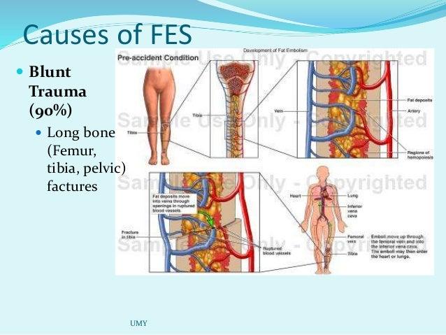 Fat emboli syndrome