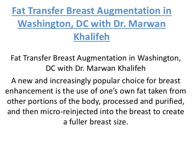Breast augmentation dc area