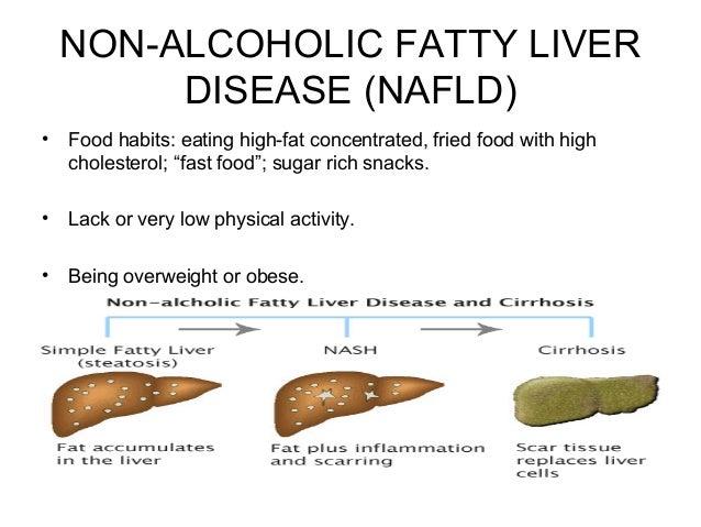 Fatty Liver By D Gnanasingh Arputhadas