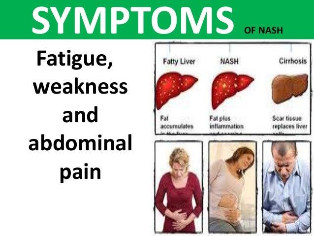 in fatty liver / nash,dr. yogesh agarwala , dr. sharda jain ,, Cephalic Vein