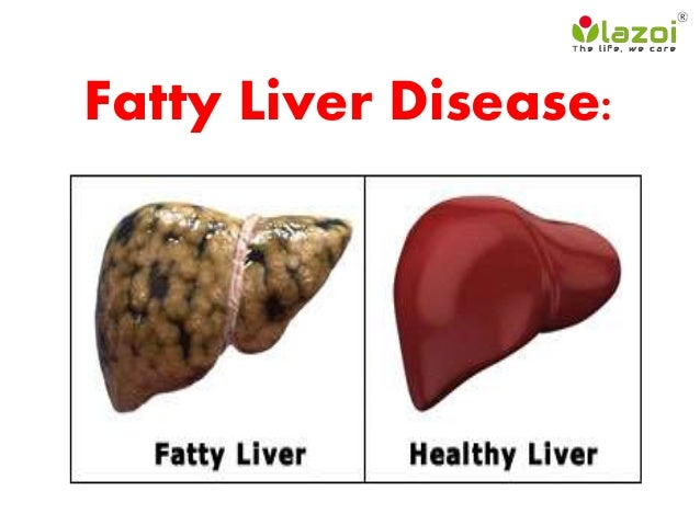 Natural Remedies For Healing The Liver