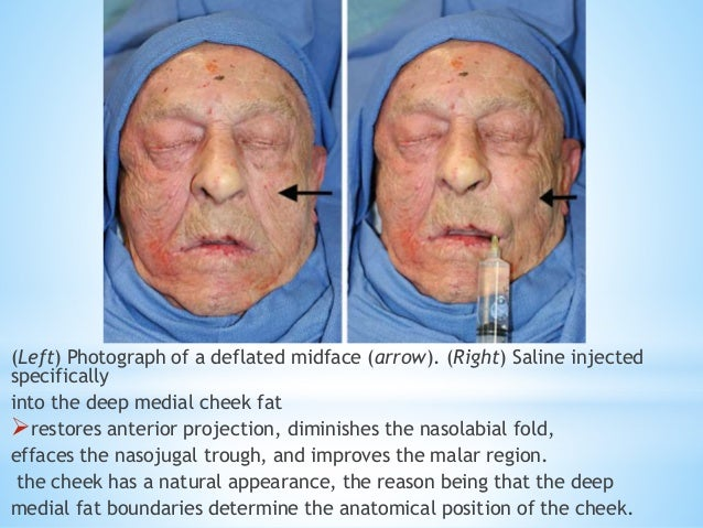 Fawzy a fat compartments and retaining ligaments of the face