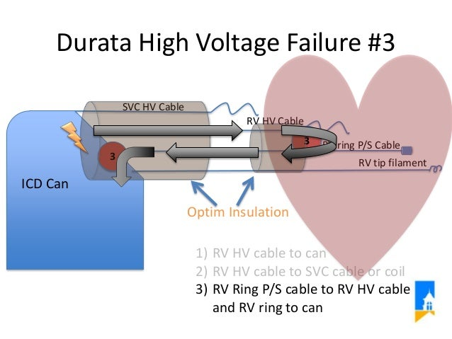 High Voltage Insulator Failures : Icd system high voltage component failure presented to fda