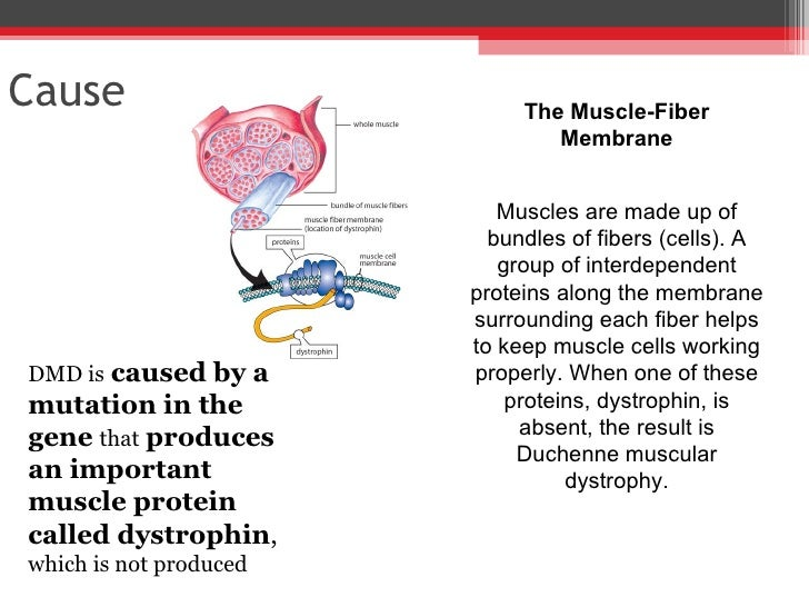understanding duchenne muscular dystrophy and its causes Support materials parent project muscular dystrophy is happy to of all ages with a clear understanding of duchenne of duchenne muscular dystrophy.
