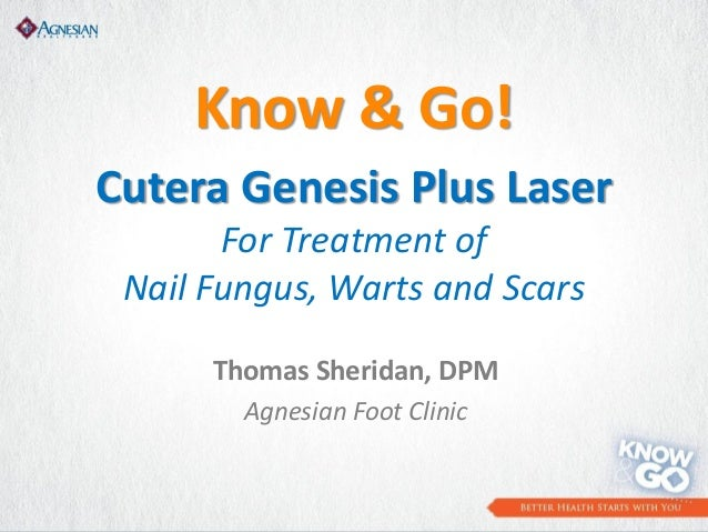Know & Go! Cutera Genesis Plus Laser For Treatment of Nail Fungus, Warts and Scars Thomas Sheridan, DPM Agnesian Foot Clin...