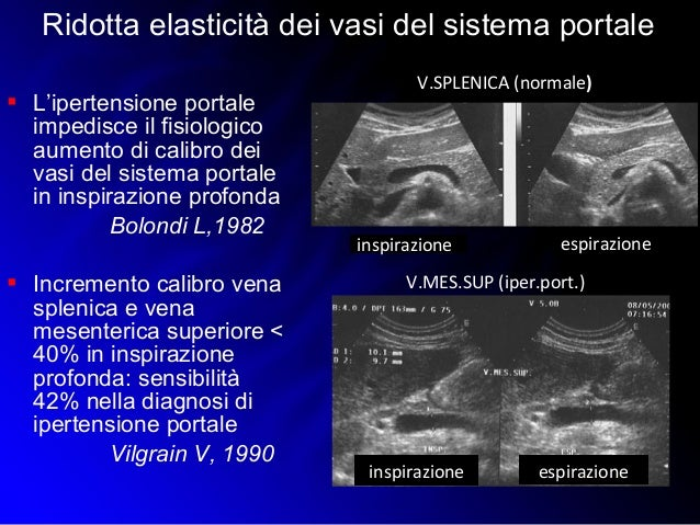 Pompili M. Fegato (Anatomia e Patologia Diffusa) Colecisti..