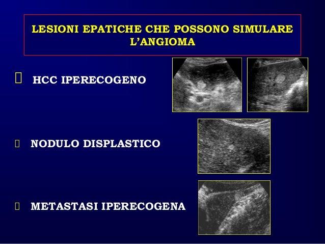 Nodulo ipo anecogeno al fegato