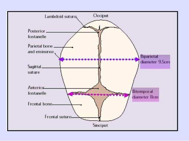 diagram of the fetal skull wiring diagram online Abnormal Fetal Head Shape diagram of the fetal skull wiring diagram fetal posterior skull diagram of the fetal skull