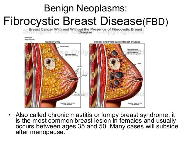 Fibrocystic Breast Natural Treatment