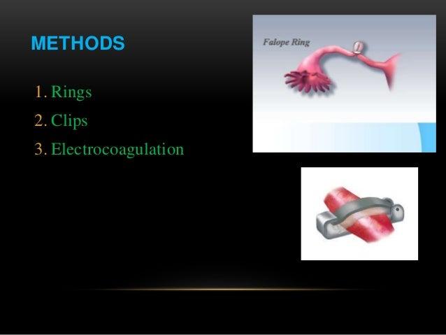 Procedure for Tubal Reversal Surgery
