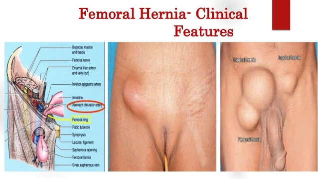 sex after a femoral hernia surgery