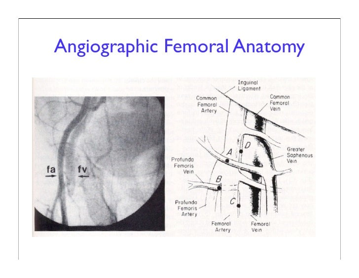 Femoral Site Complications