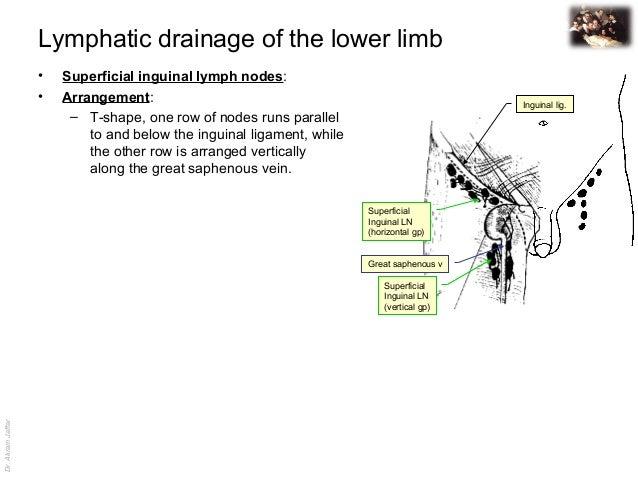 femoral lymphadenopathy - photo #38