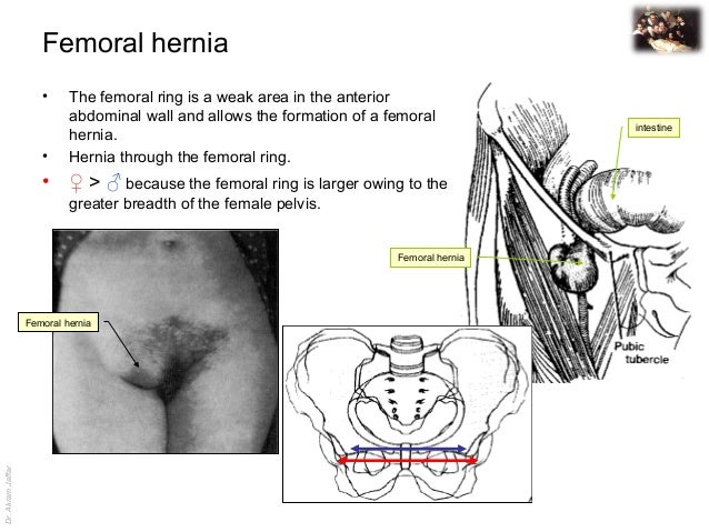 Images of Femoral Hernia Anatomy - #SpaceHero