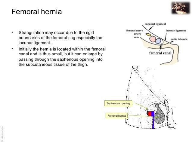 external hernia