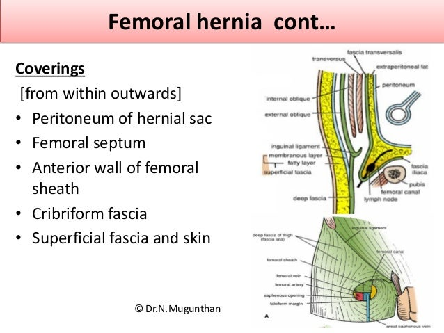 Femoral triangle & inguinal lymph nodes Dr N Mugunthan