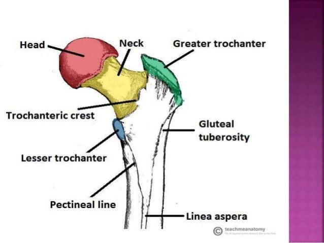 Femur fracture Slide 3