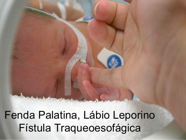 Fenda Palatina, Lábio Leporino  Fístula Traqueoesofágica