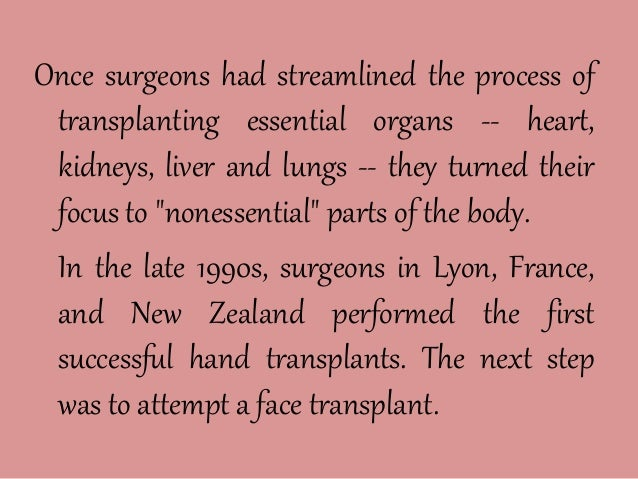 a history of the development of the technique of face transplants 18092005 surgeon to try face transplants  and the practice she has done on animals and dozens of cadavers to perfect the technique  the history and future.