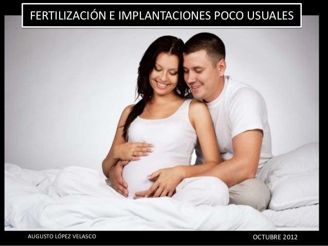 FERTILIZACIÓN E IMPLANTACIONES POCO USUALESAUGUSTO LÓPEZ VELASCO               OCTUBRE 2012