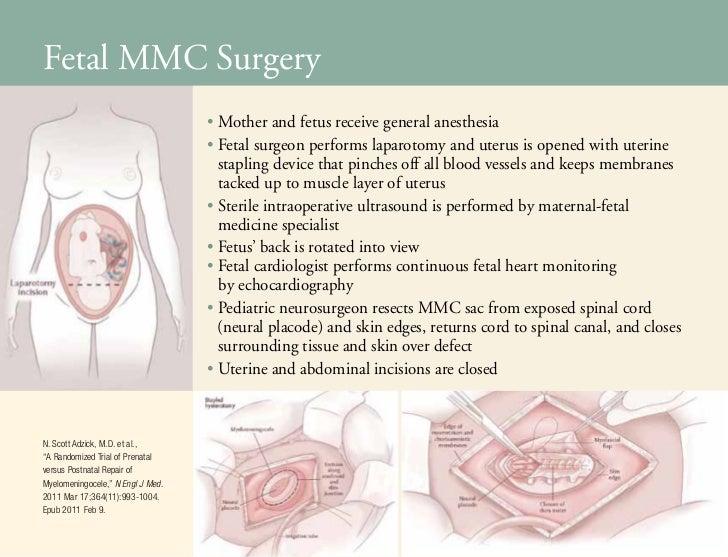 Fetal Surgery for Spina Bifida
