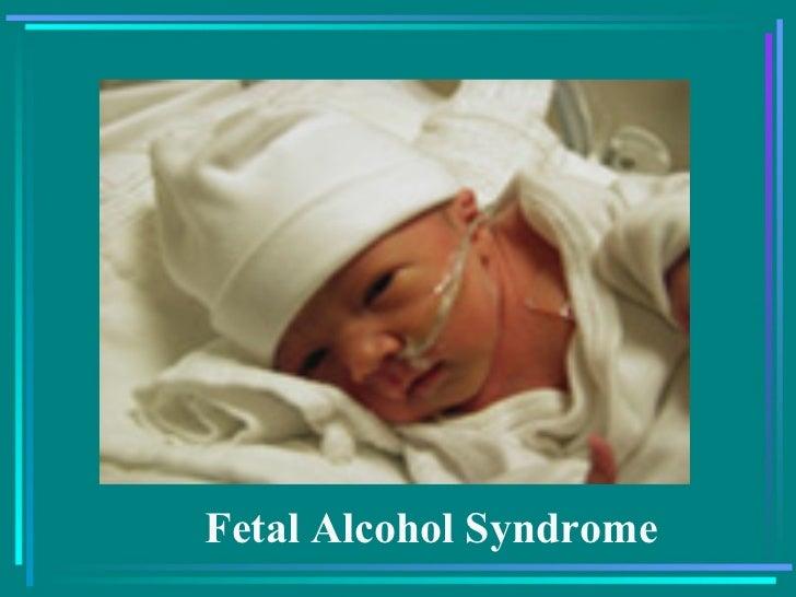 fetal alcohol syndrome essay questions