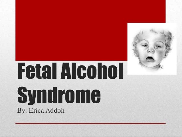 Fetal AlcoholSyndromeBy: Erica Addoh