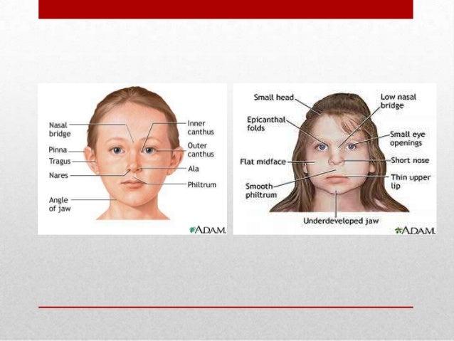 Alcohol symptoms syndrome fetal of Fetal Alcohol