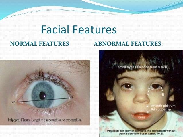 Facial features of fetal alcohol