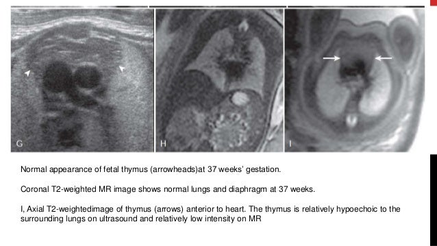 Fetal Anomaly Scan - Chest,GIT,GUT