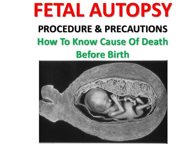 FETAL AUTOPSY PROCEDURE & PRECAUTIONS How To Know Cause Of Death Before Birth