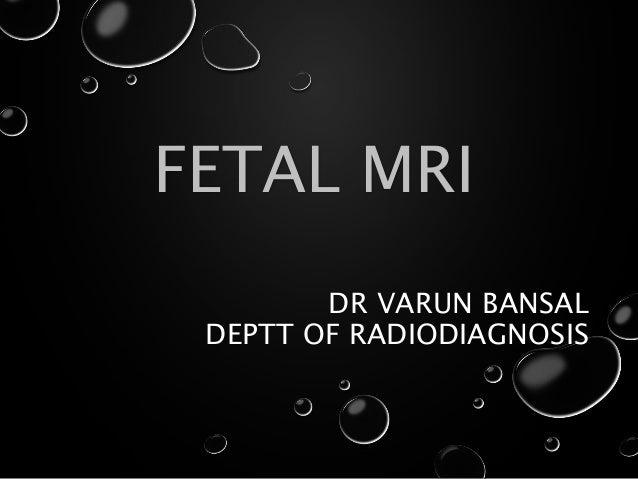 DR VARUN BANSAL DEPTT OF RADIODIAGNOSIS FETAL MRI