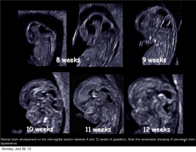 Fetal Neurosonogram
