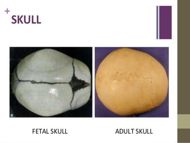 Fetal skull ppt Slide 3