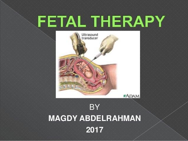 BY MAGDY ABDELRAHMAN 2017