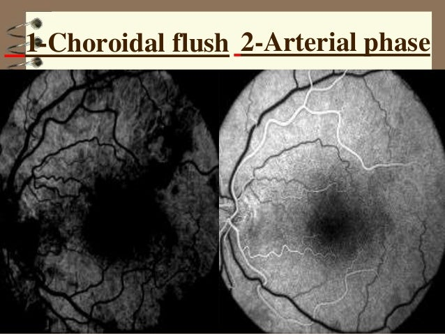 Red Free Fundus Photos Normal Appearance Autofluorescence