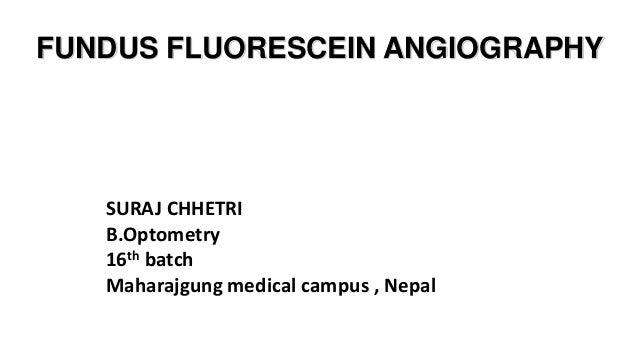 FUNDUS FLUORESCEIN ANGIOGRAPHY SURAJ CHHETRI B.Optometry 16th batch Maharajgung medical campus , Nepal