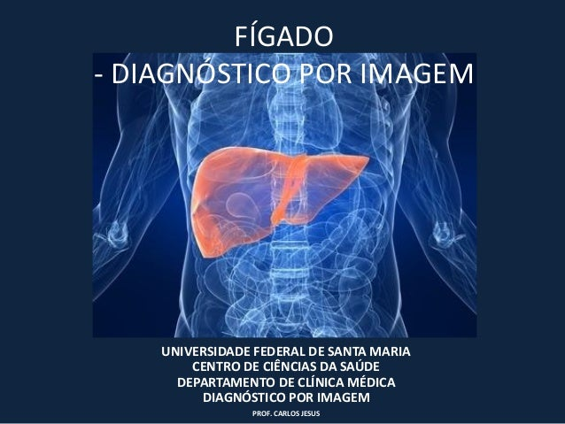 FÍGADO- DIAGNÓSTICO POR IMAGEM    UNIVERSIDADE FEDERAL DE SANTA MARIA        CENTRO DE CIÊNCIAS DA SAÚDE      DEPARTAMENTO...