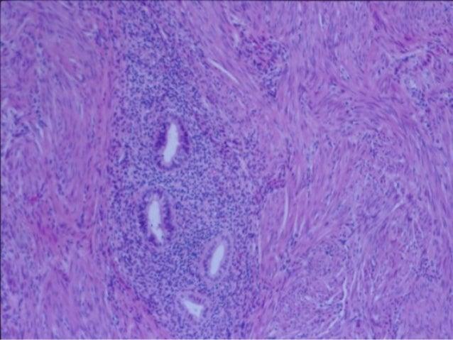 Ovary Slide Primordial Follicles